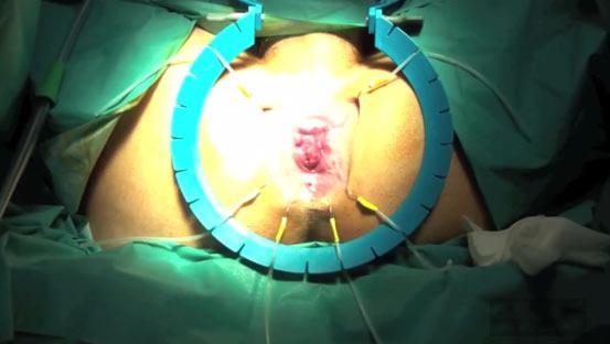 Gepatrombin a unincrinatura anale